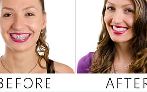braces-before-and-after-promote-your-dental-practice-with-tiktok-Dental-Marketing-Heroes